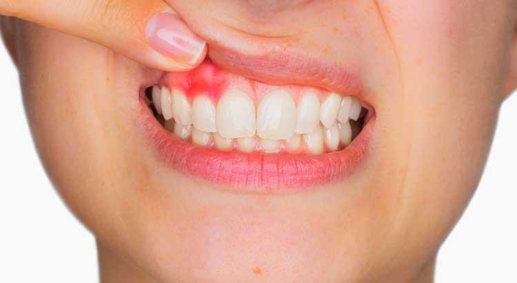 """Bắt bệnh"""" chảy máu chân răng và phương pháp điều trị - Nha khoa Quốc Tế  Việt Pháp : Nha khoa Quốc Tế Việt Pháp"""